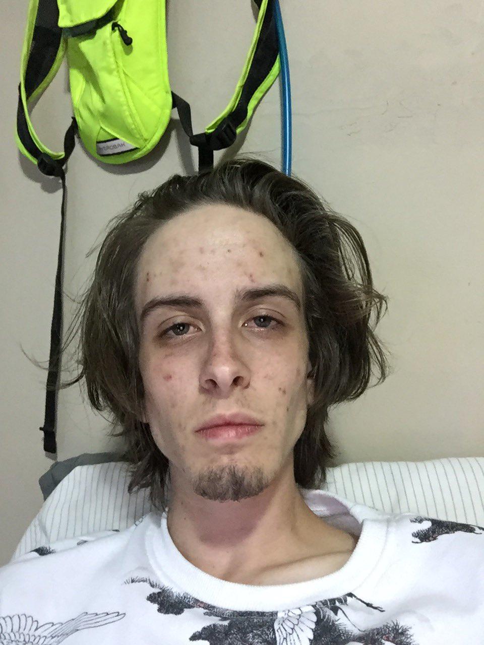 Foto vo vnútri: Takto vyzerá dnes mladík, ktorý bol kedysi drogovo závislý