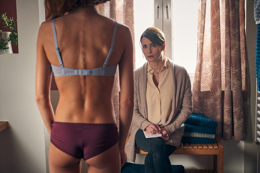 LEN KOSŤ A KOŽA! Anorexia je podceňovaná! Filmové spracovanie poučného príbehu Vám otvorí oči!